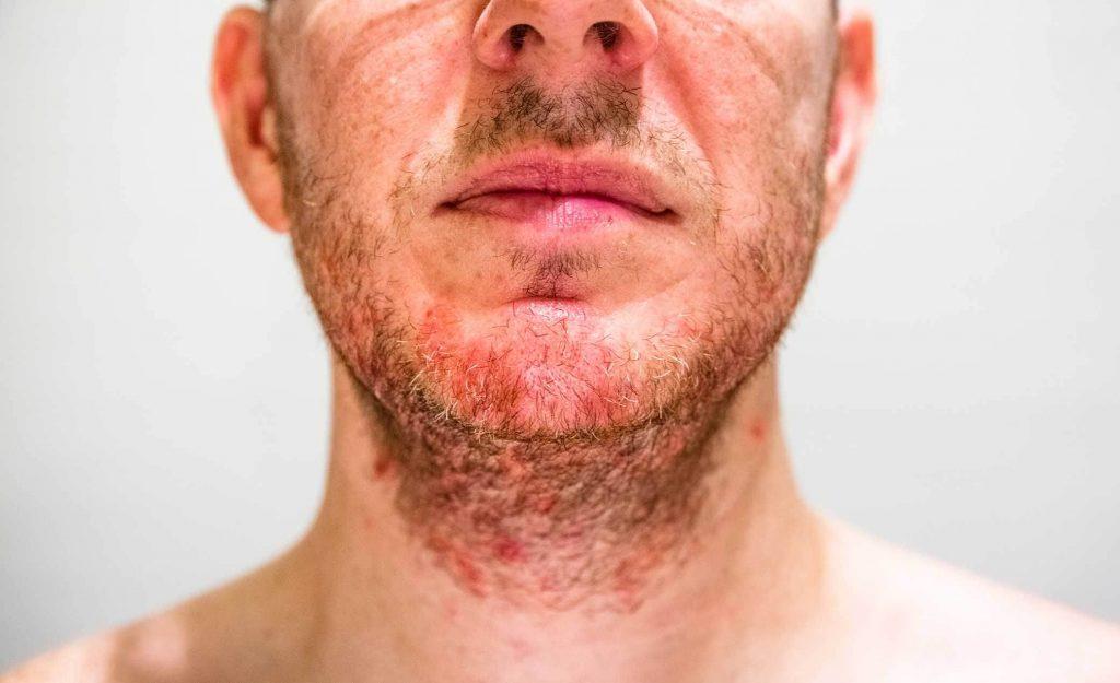 la barbe d'un homme avec des plaques rouges et des squames