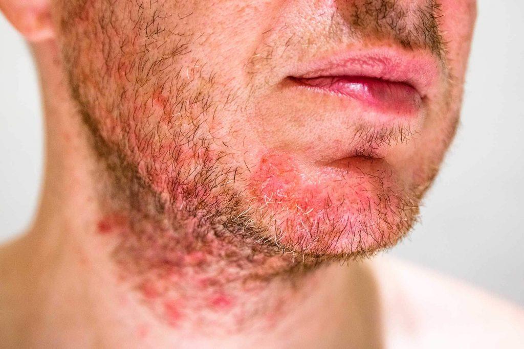 La barbe d'un homme touché par la dermite seborrheique