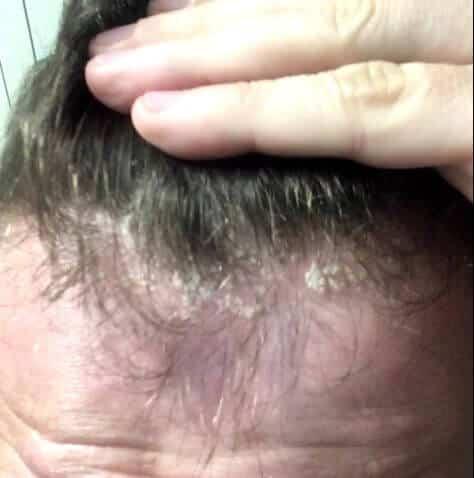 Squames importante sur la tête d'un homme à la lisière du cuir chevelu