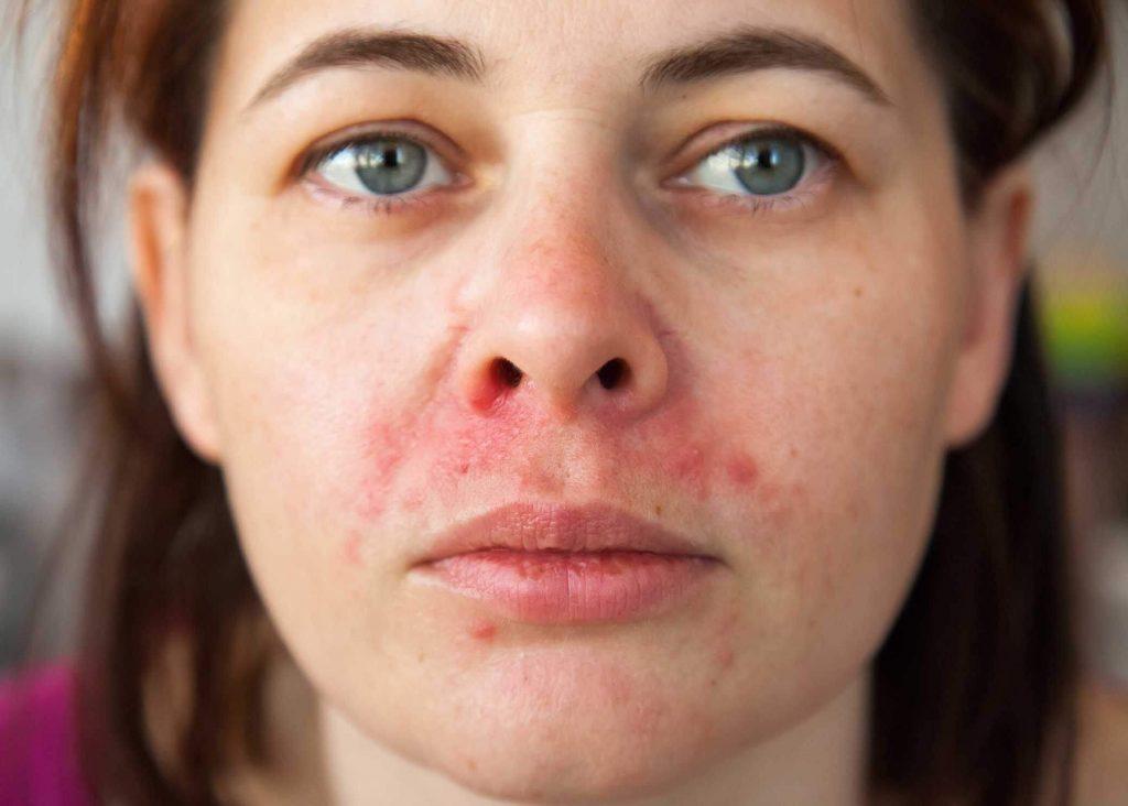 Femme avec des symptômes de dermite seborrheique autour du nez